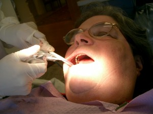 Dental_hygienist_atwork
